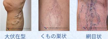 大伏在型、くもの巣状、網目状の静脈瘤の図