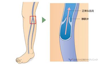 正常な静脈の説明図